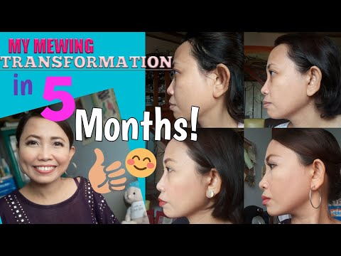MY MEWING TRANSFORMATION IN 5 MONTHS! (MEWING WORKS!)