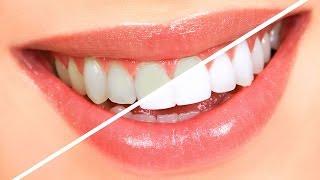 Evde Diş Beyazlatma Yöntemleri (Doğal)