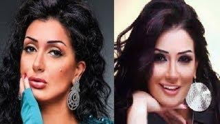 فنانات عربيات وقعن ضحايا عمليات التجميل... لن تتخيل ماذا حدث لهم