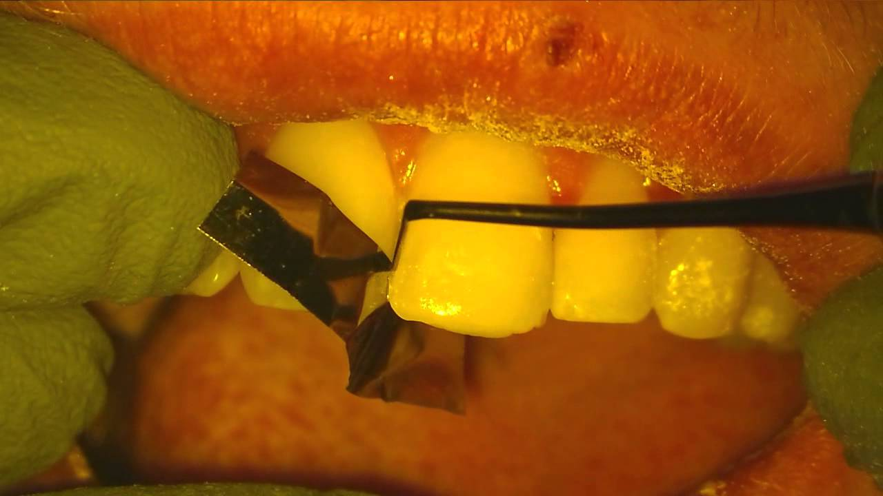 How to fix a little chip in your tooth