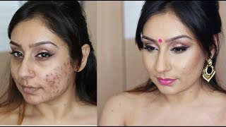 Tutorial acne rosacea foundation routine makeup tutorial | Makeup With Raji