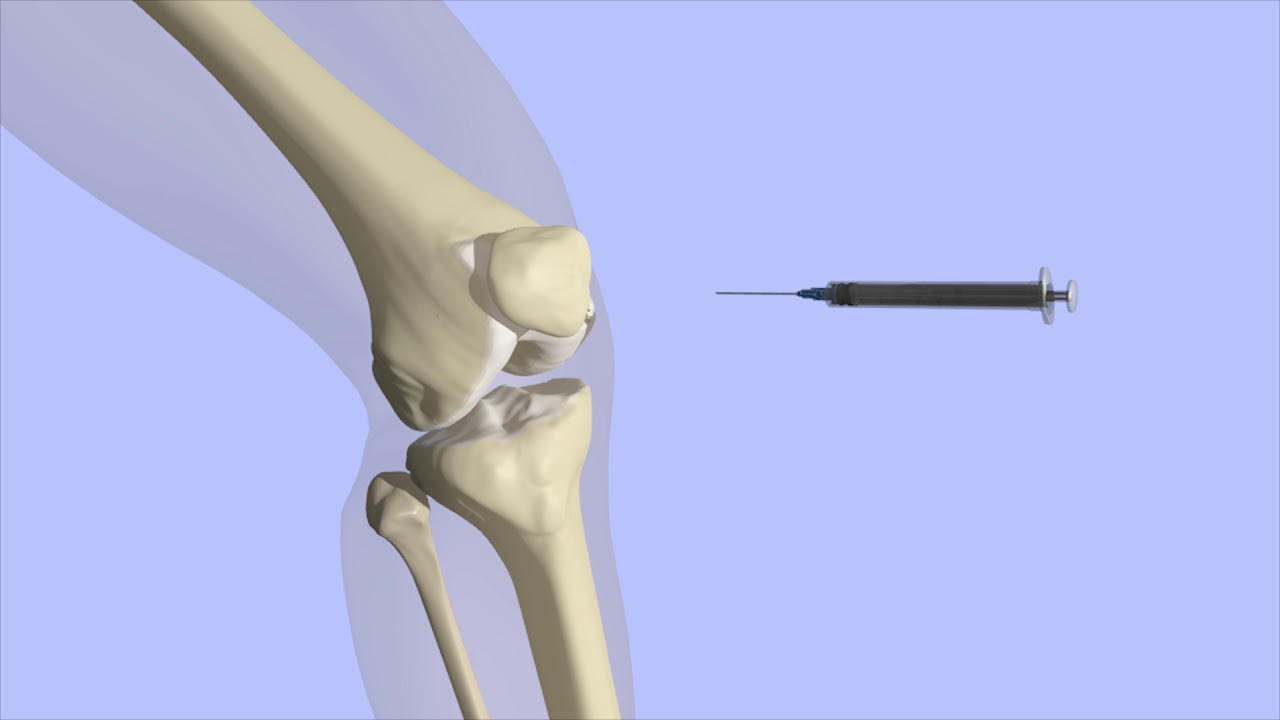 steroid injection in knee video