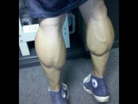 Кирилл Терешин показал свои Ноги базуки после операции