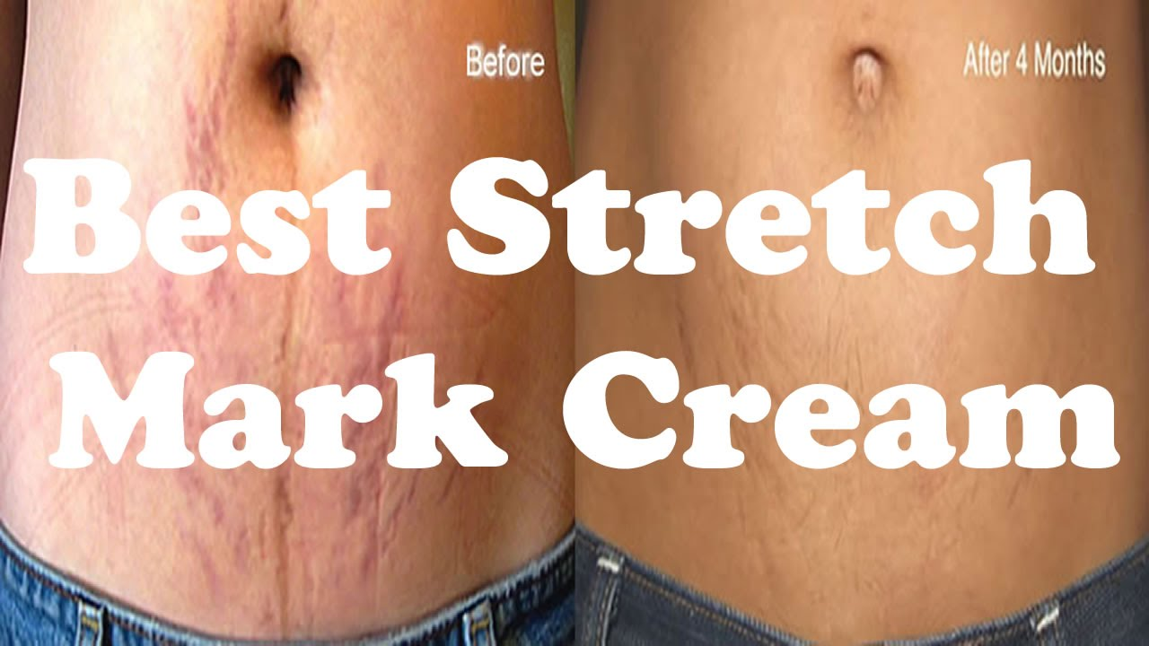 Best Stretch Mark Removal Cream See Rapid Visible Results In