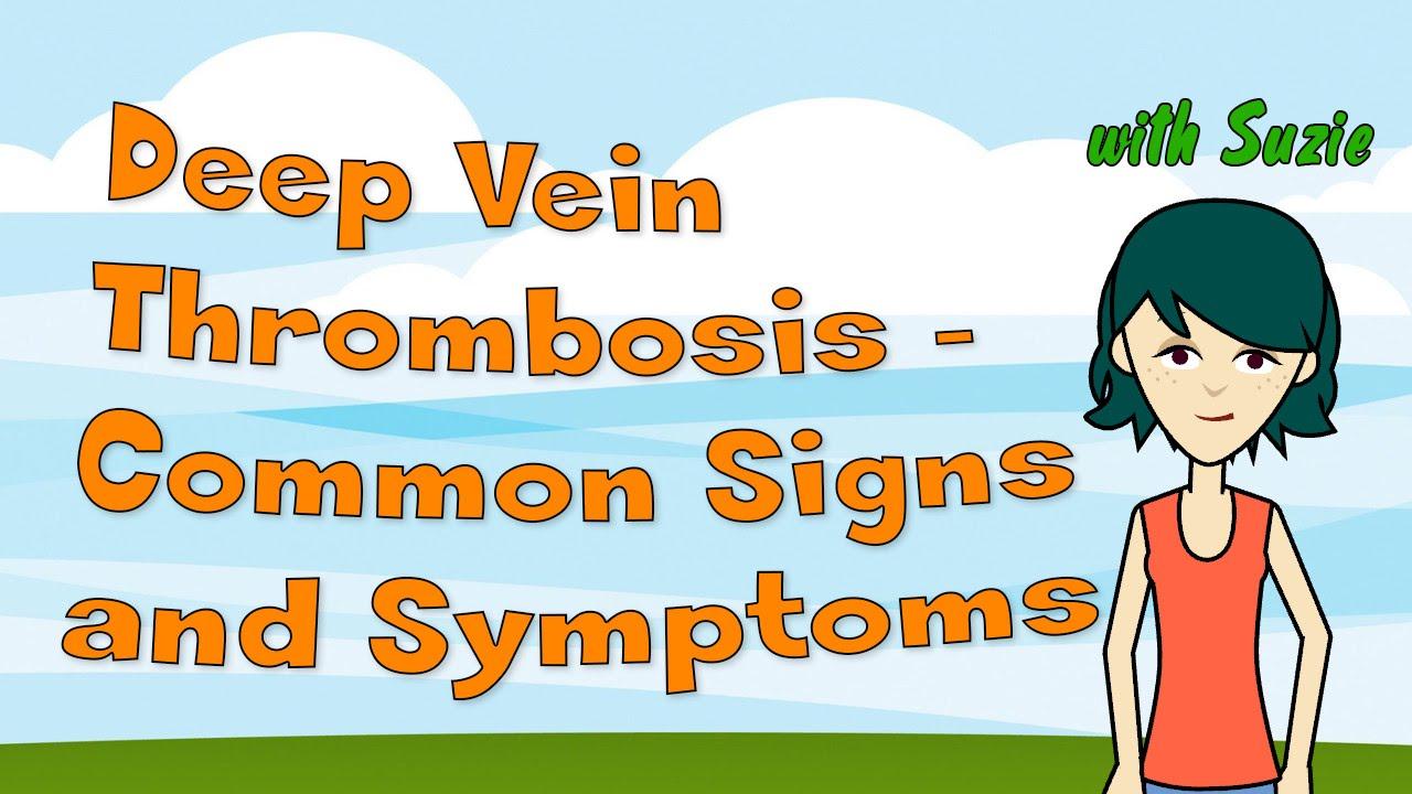 symptoms of dvt – applecool, Cephalic Vein