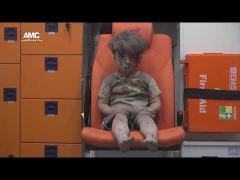 Halep'te enkazdan çıkarılan 5 yaşındaki Ümran'ın bakışları