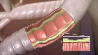 Aerobika* OPEP Device - How It Works - Trudell Medical International