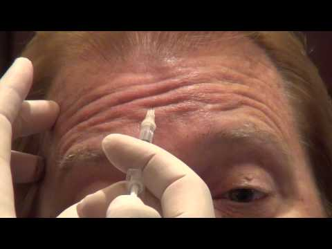 Botox Training - Forehead Injections - Empire Medical Training