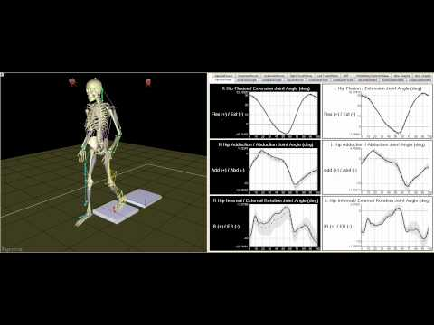 Gait Motion Analysis Technology - Motion Analysis