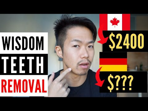 [Ep.1 Of 3] Wisdom Teeth Removal In Germany: Cost. Insurance. Process. English.