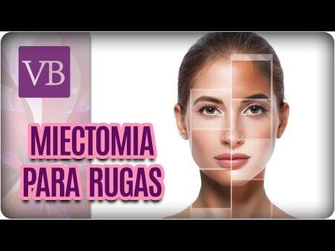 Miectomia: Tratamento Para Rugas - Você Bonita (21/03/18)
