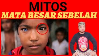 How is ptosis repair surgery (eyelid lift) done in children?.