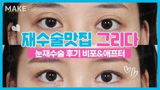 눈재수술 전후사진 후기  쌍꺼풀재수술 눈재수술 맛집 역…