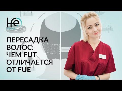 Чем метод FUT отличается от FUE? Пересадка волос | клиника HFE