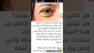 طريقة إزالة التجاعيد تحت العين (2 طرق)