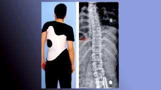 Лечение сколиоза в Израиле(Симптомы сколиоза, диагностика сколиоза в Израиле, современные методики лечения юношеского и дегенеративн..., 2014-09-23T11:50:23.000Z)