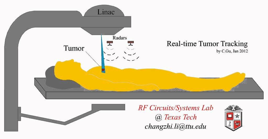 Linac-respiration Monitor-radiotherapy-lung Cancer Mov