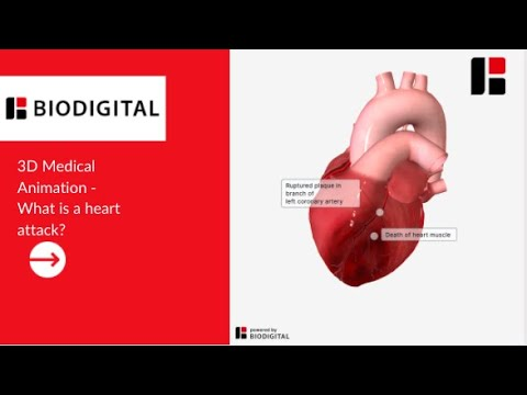 3D Medical Animation - What is a Heart Attack?
