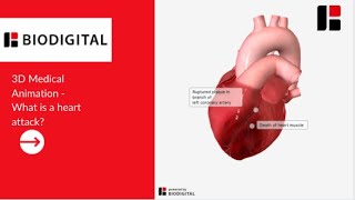 3D Medical Animation - Was ist ein Herzinfarkt?