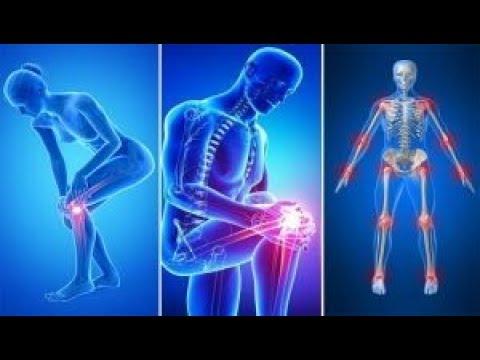 osteochondroza tratamentul unguentului din spate