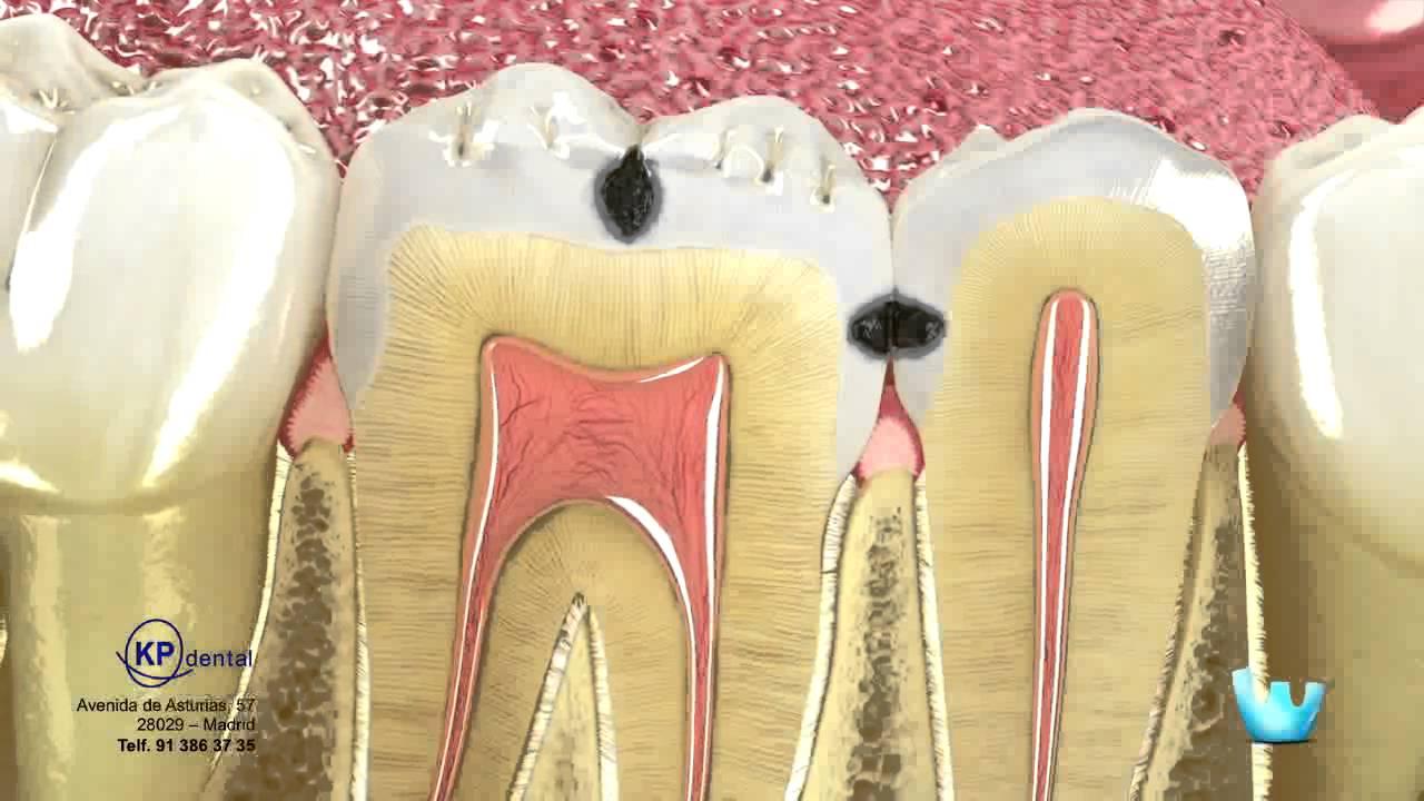 Odontología para Pacientes - La caries y la restauración