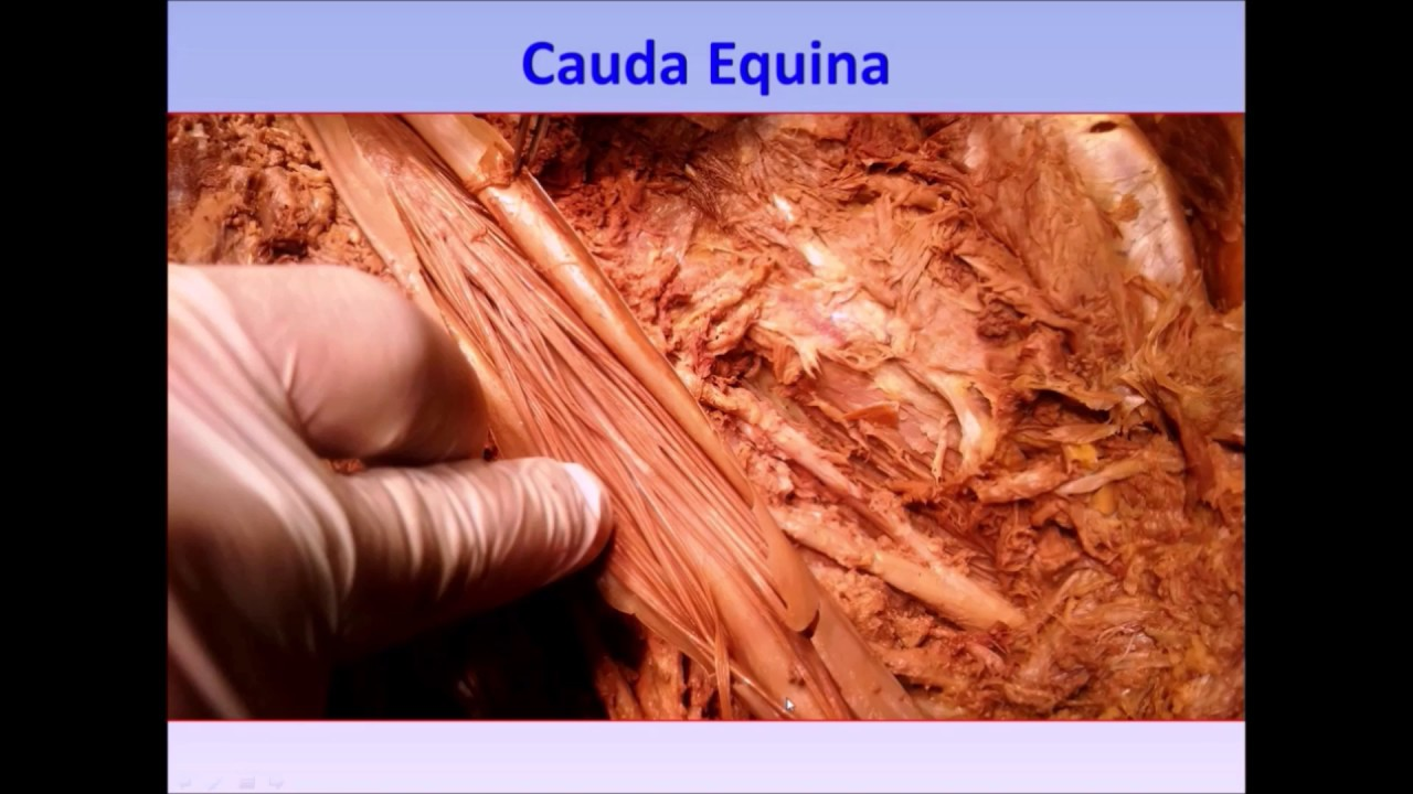 Cauda Equina Conus Medullaris Filum Terminale Lumbar Cistern Syndromes Lp Demo Sanjoy Sanyal Youtube The conical shaped caudal end of the spinal cord lies on the rostral border of the second lumbar vertebra called the conus medullaris. cauda equina conus medullaris filum terminale lumbar cistern syndromes lp demo sanjoy sanyal