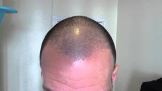 Hair Growth Experiment Using Rogaine Minoxidil 5% Day 50