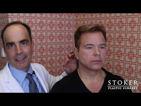 eyelid-surgery-los-angeles:-plastic-surgeon-dr.-david-stoker-reviews-male-facial-plastic-surgery
