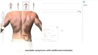 BodyDiagrams: Improving Communication of Pain Symptoms through Drawing