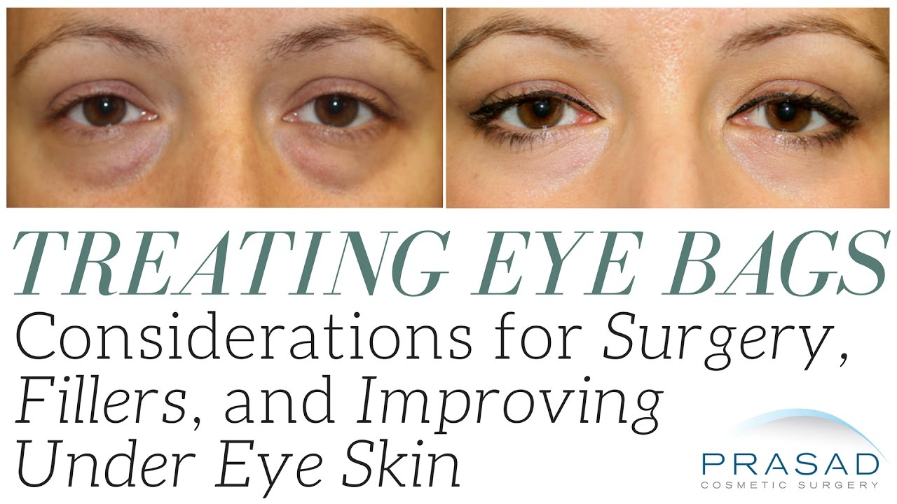 Under Eye Filler for Hollow Eyes, Tear Troughs and Under Eye