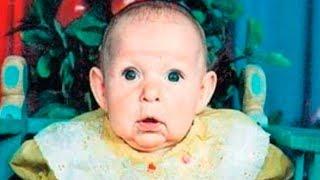 Babası, Suratını Görünce Bebeğini Terk Etti., 21 Yıl Sonra Bakın Nasıl Pişman Oldu.