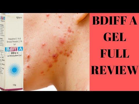 BDIFF A GEL FULL REVIEW BEST GEL FOR ACNE VULGARIS?