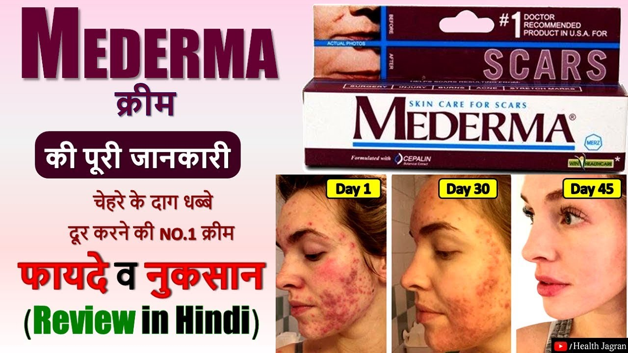 Mederma Cream Review In Hindi Use Price Benefits S Effects