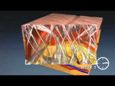 Deka Dot Laser Resurfacing By Dr Robert Applebaum Doovi