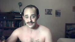 balding, propecia, etc