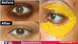 ஒரே இரவில் கருவளையங்களைப் போக்க  Remove Dark circle in tamil   Tamil Beauty Tips