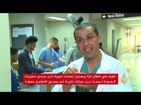 أطباء بغزة: رصاص الاحتلال المتفجر ينهش أجساد المتظاهرين  - 19:22-2018 / 5 / 31