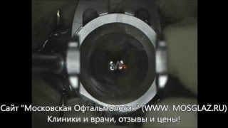 Лазерная коррекция близорукости (миопии) - видео операции(Видео операции лазерной коррекции зрения при близорукости (миопии) методом ЛАСИК (LASIK). Подробнее на нашем..., 2016-02-19T15:03:49.000Z)