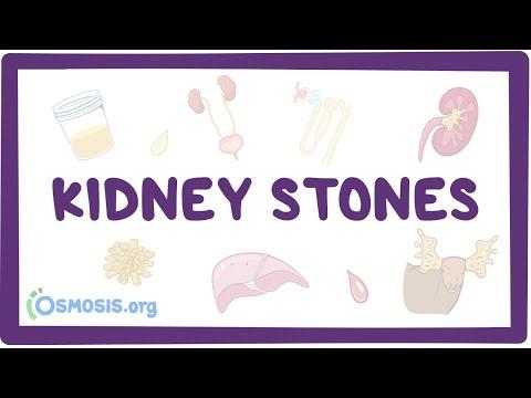 Kidney Stones (nephrolithiasis) - Causes, Types, Diagnosis, Pathology
