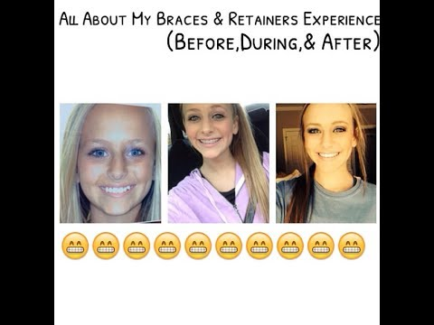 Retainers before and after
