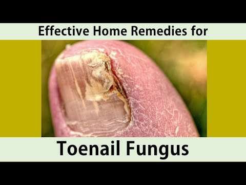 Home Remedies for Toenail Fungus|Tea Tree oil, Listerine.