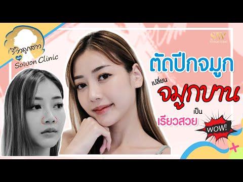 ตัดปีกจมูก เปลี่ยนจมูกบานเป็น เรียวสวย หน้าเป๊ะจนคนทัก WOW!! I รีวิวลูกสาวหมอ Sowon Clinic EP.41
