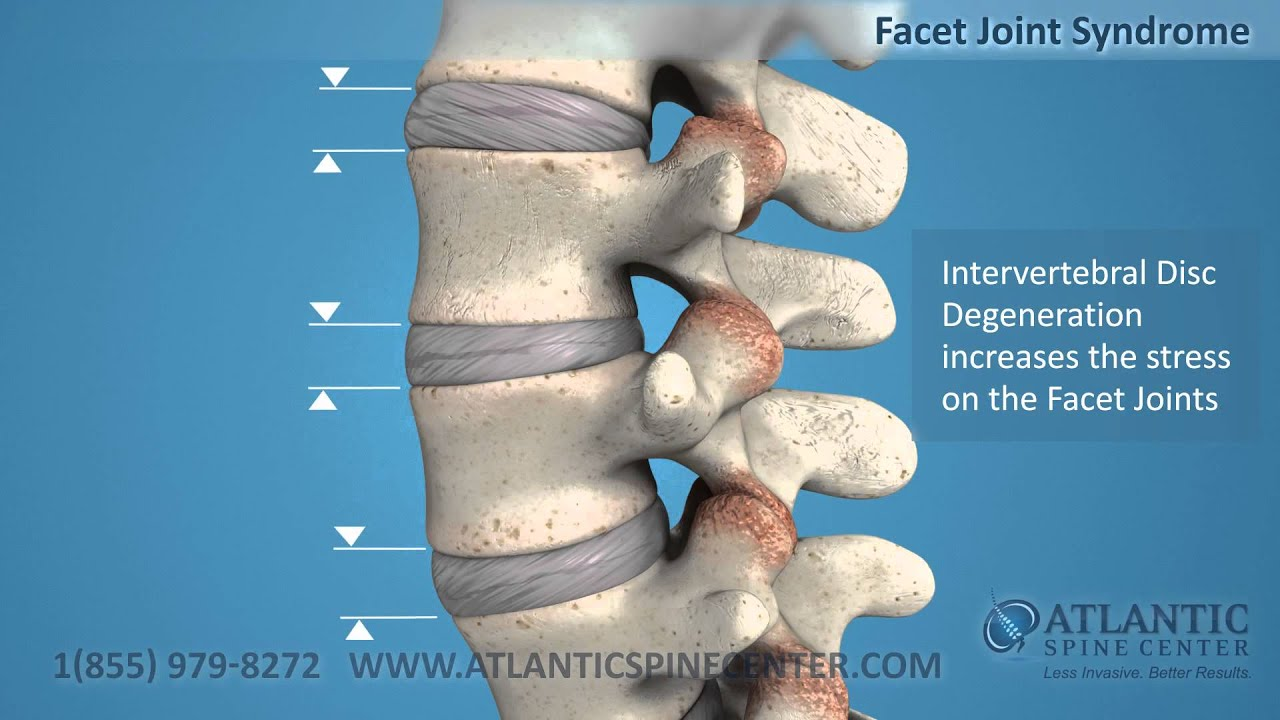 Facet Joint Syndrome | www.imgkid.com - The Image Kid Has It!
