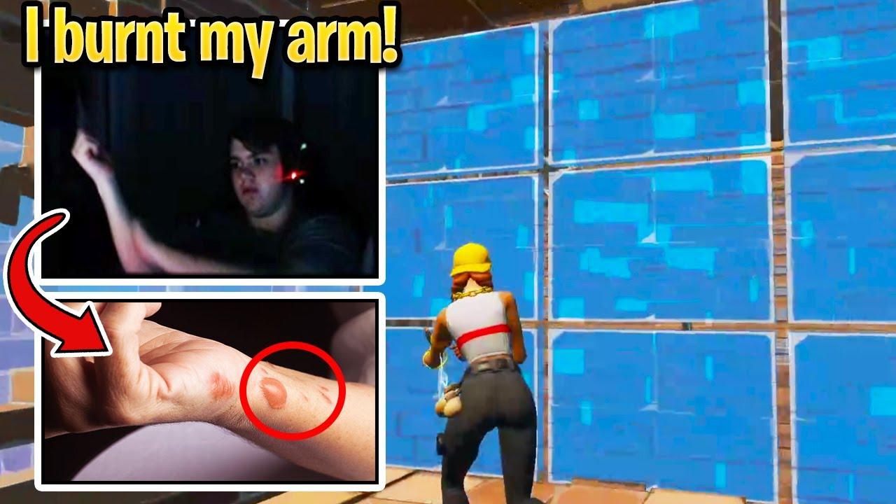 Mongraal BURNT HIS ARM SKIN By Editing Like a MACRO! (Fortnite)