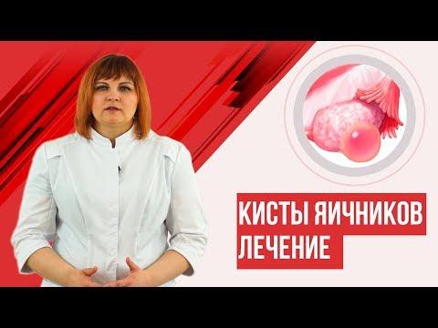 Как убрать кисту яичника без операции