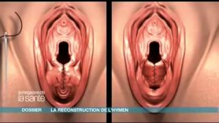 Repeat youtube video reportage sur hymen