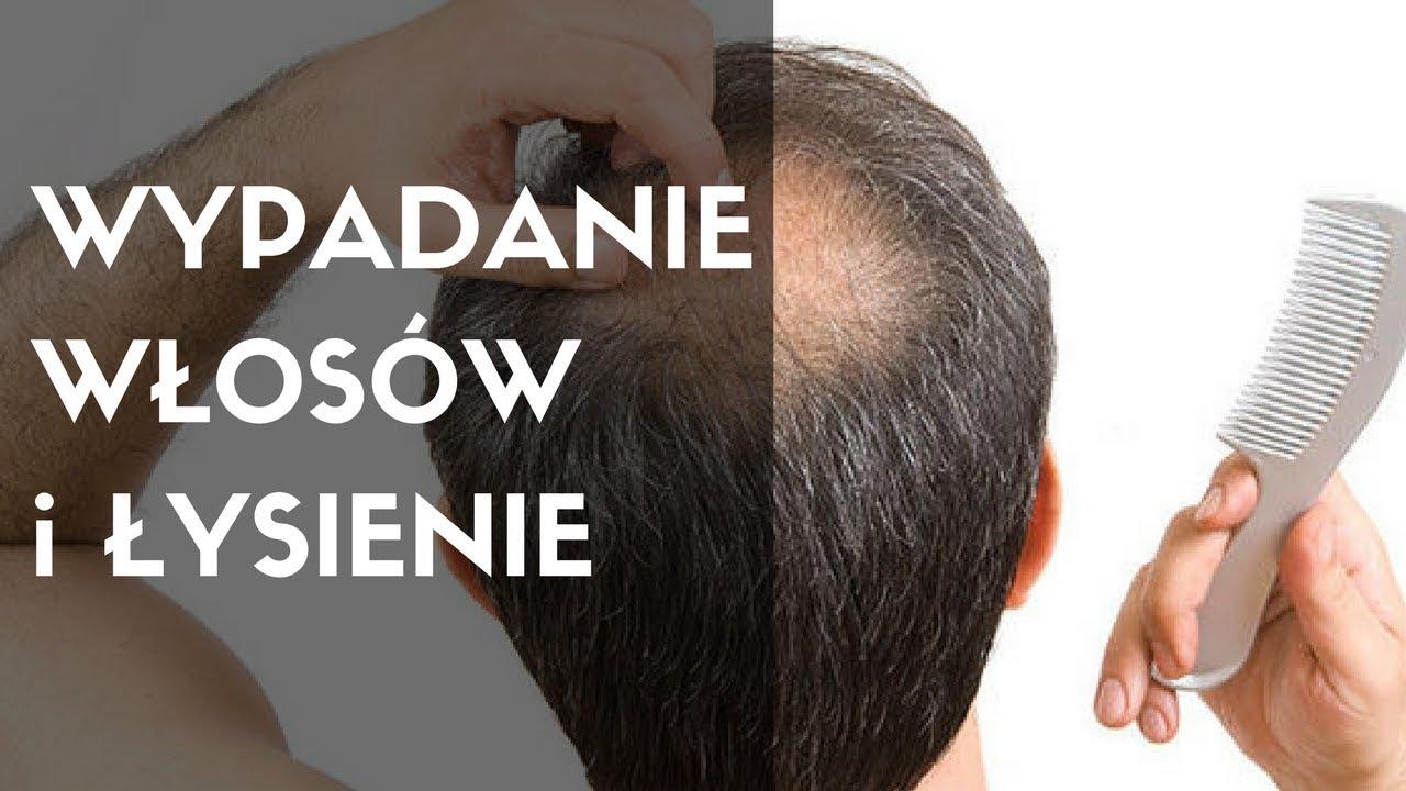 dermatolog wypadanie włosów opole