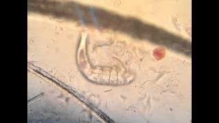Demodex under the microscope