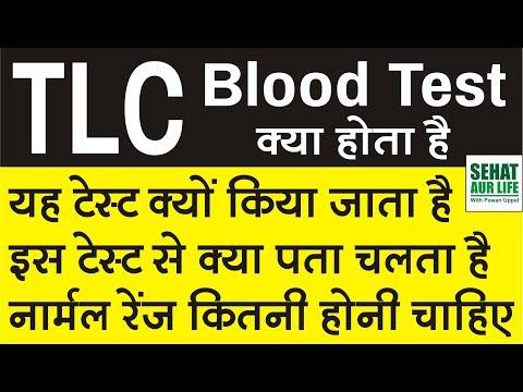 TLC Test क्या होता है, यह टेस्ट क्यों किया जाता है, नार्मल रेंज कितनी होनी चाहिए