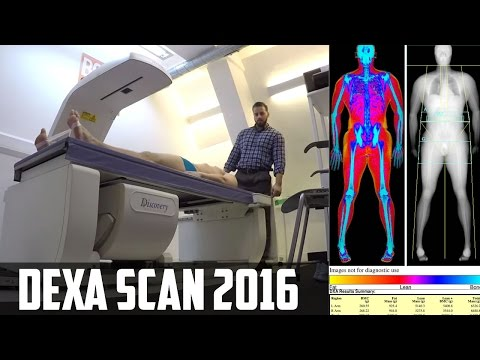 DEXA SCAN FOR BODY FAT - RESULTS 2016 [Before My 70 Day Workout Challenge!]
